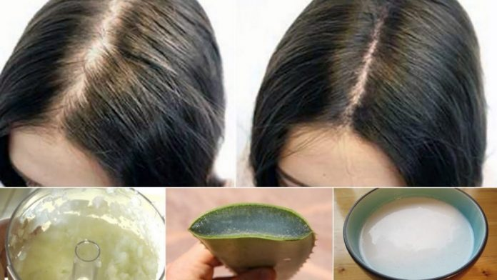 Natural Hair loss Home Remedies for Pakistani Girls