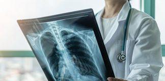 Asthma Specialist Doctors in Pakistan
